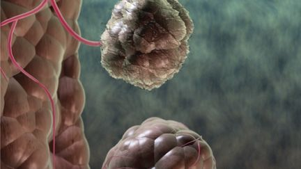 tumour growth