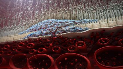 human retina cross section - advanced AMD