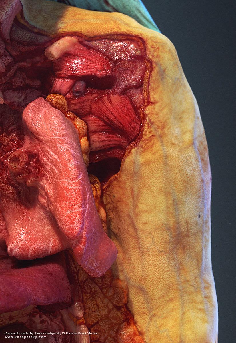 Mrriddick human cadaver 3d mod 1 f886f438 dzsy